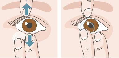 aplicarea lentilelor de contact