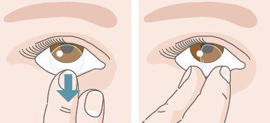 Îndepărtarea corectă a lentilelor de contact