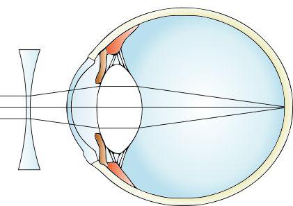 lentile de contact pentru corectarea miopiei